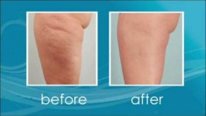Video thumbnail for youtube video How Cellulaze Combats Cellulite - Clarify Clinic